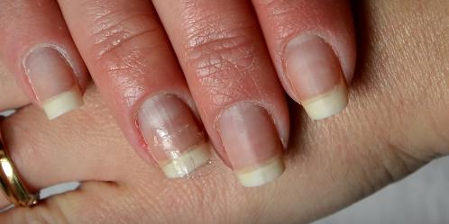 How To Fix A Broken Nail With Nail Polish