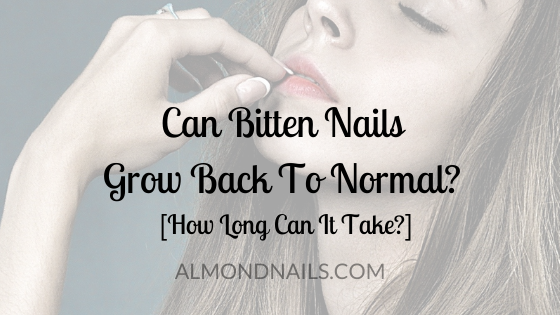 Can Bitten Nails Grow Back To Normal? [How Long Can It Take?]